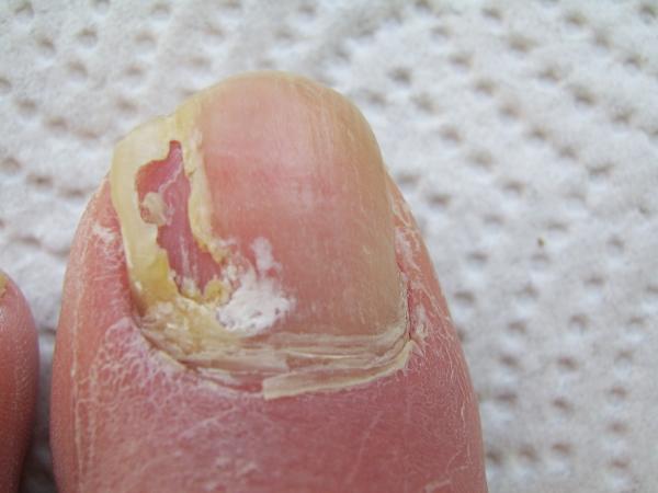 При стрижке ногти крошатся