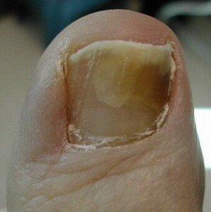 Грибок около ногтя лечение