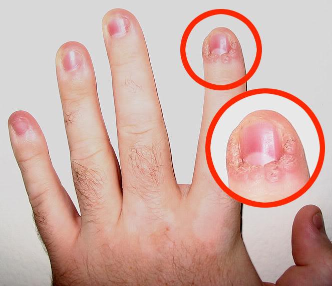 Лекарство от грибка ногтей для беременных