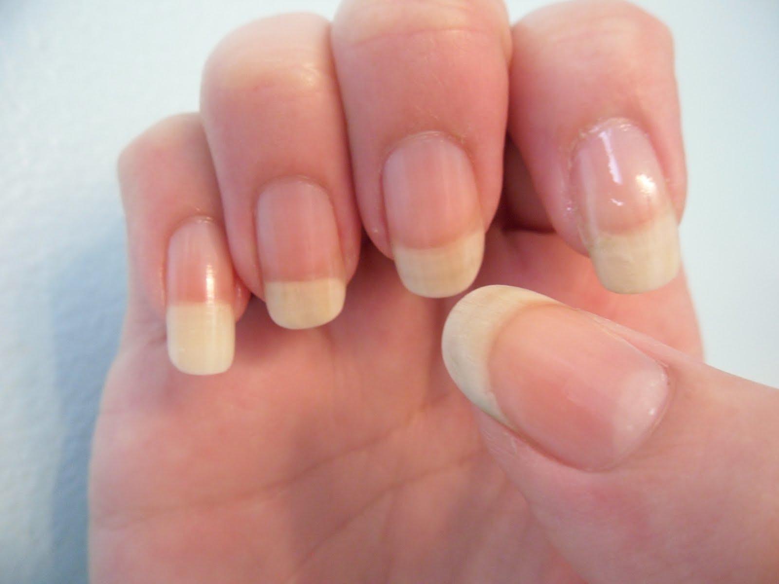 Микоз ногтей на руках фото