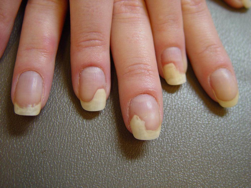 Как убрать /вывести грибок ногтя в домашних условиях.
