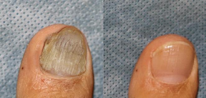 Вылечить застарелый грибок ногтей на ногах