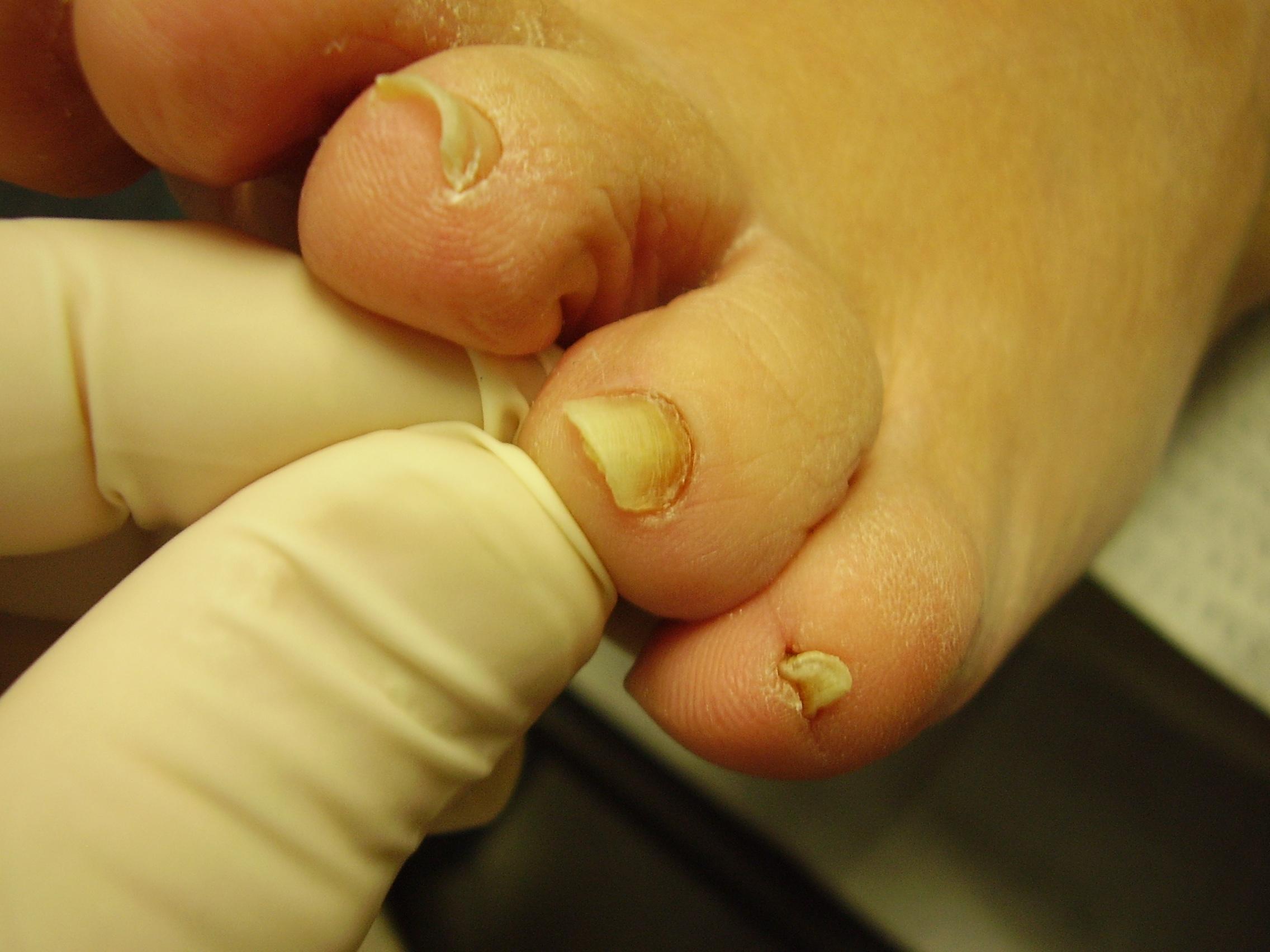 Грибок на ногтях ног лечение народными средствами.