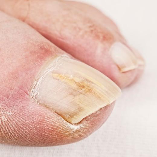 Как избавиться от косметического грибка на коже