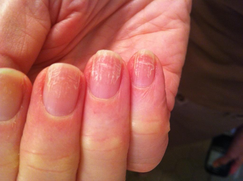 Фото как выглядит грибок на ногтях на ногах