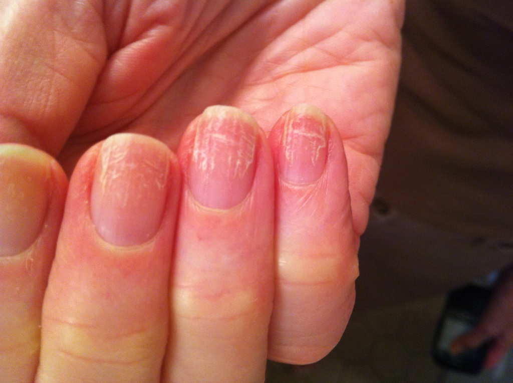 аллергия на ногтях на базу коди