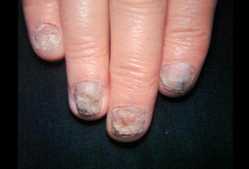 Против грибка ногтей при беременности