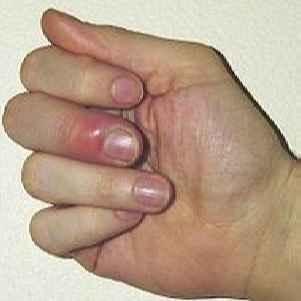 gribok-lobkoviy-lechenie