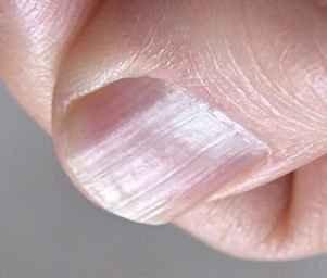 Пенза лечить грибок ногтях