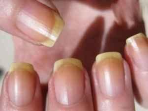 Лазер лечение грибка ногтя