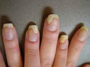Грибок ногтей и высыпания на коже