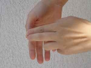 svoi-lekarstva-gribok-nogtej-na-rukax-lechim-sami 3