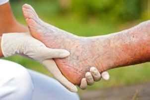 Грибки на ногах лечение народными