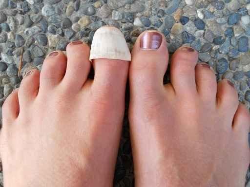 Как вылечить грибок ногтей медикаментозно