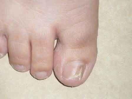 Средство шоль от грибка ногтей