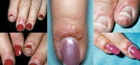 Грибок ногтей на ногах: фото, симптомы, препараты