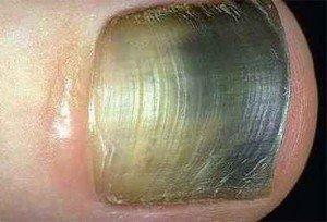 Дрожжевой грибок ногтя  фото 2