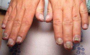 Дрожжевой грибок ногтя  фото 3