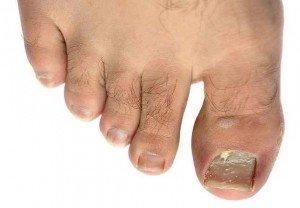 Плесневый грибок на ногтях ног, фото и признаки 3