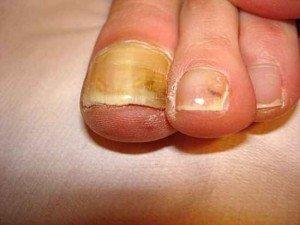 Дерматофиты или грибок ногтей симптомы 1