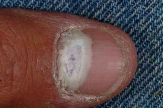 Лечение грибка стоп и ногтей форум