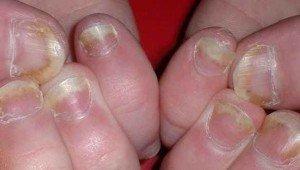 Дерматофиты или грибок ногтей симптомы