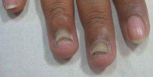 Дерматофиты или грибок ногтей симптомы 4