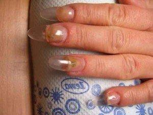 Лечение грибка ногтей на руках листьями рябины 2