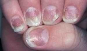 Лечение грибка ногтей на руках листьями рябины 3