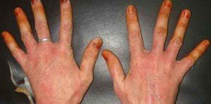 Грецкий орех, как лекарство против грибка ногтей 2